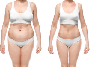 pros and cons of liposuction
