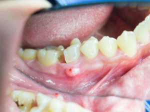 Danger Of Periodontal Disease