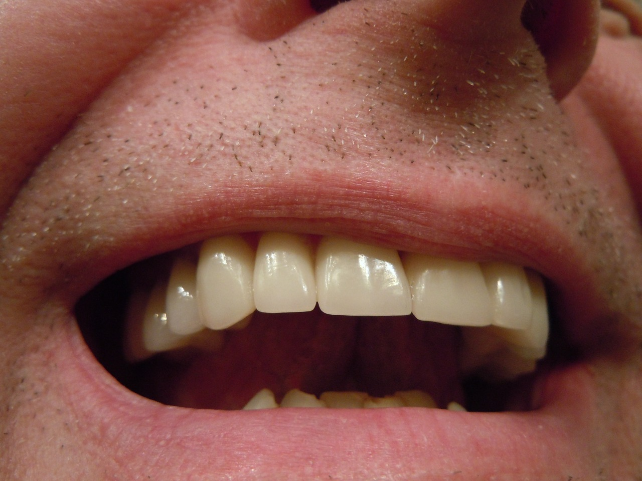 dental crown problem
