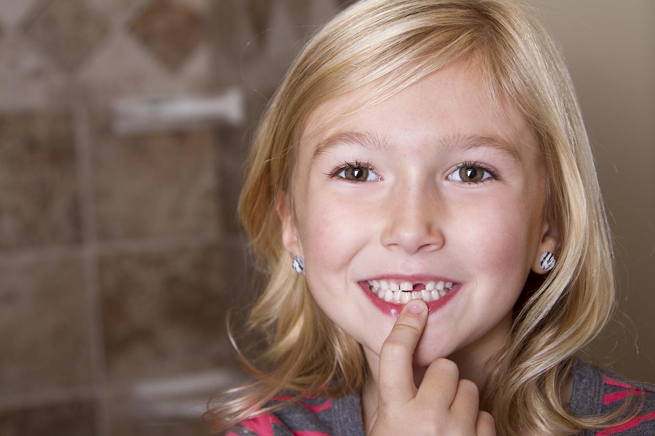 loose teeth remedies
