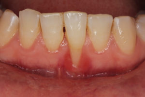 image of gum recession that can lead to an exposed tooth root