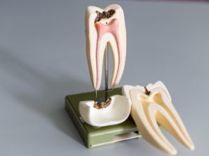 tooth anatomy showing exposed tooth root
