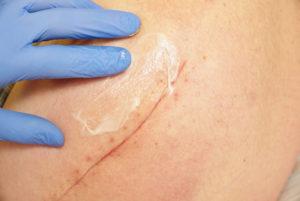 Best Scar Cream After Surgery