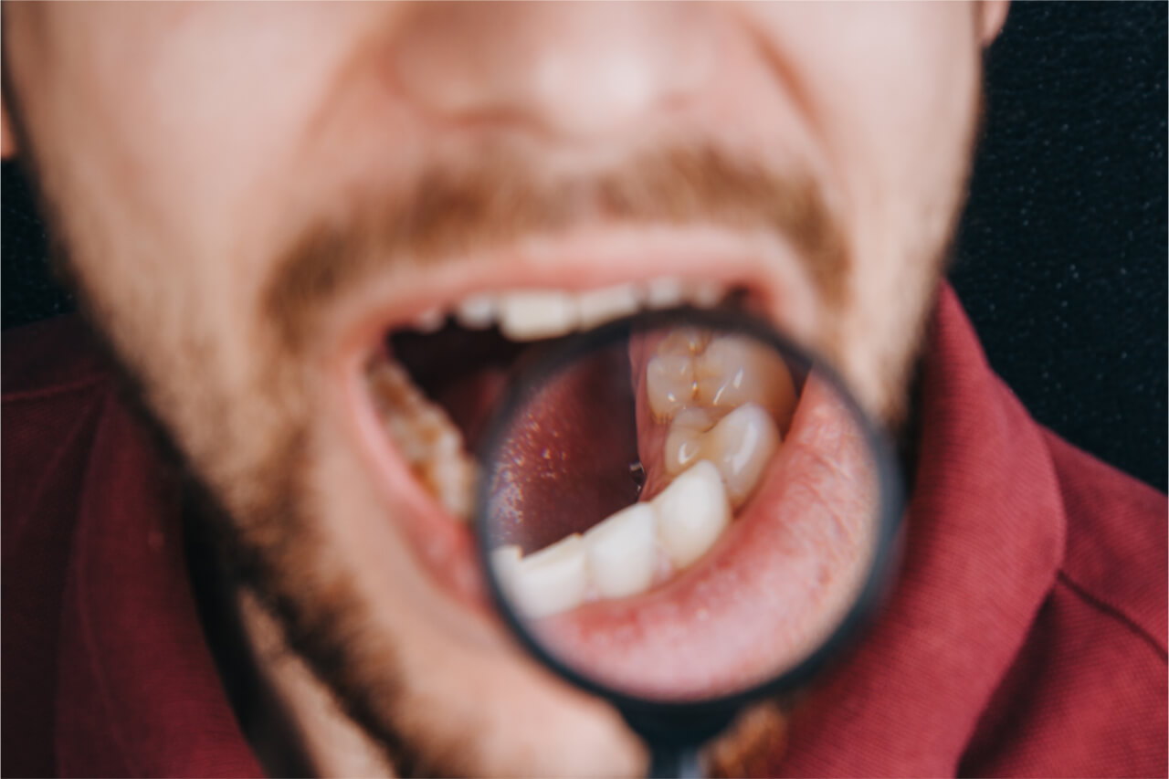 hiv mouth symptoms