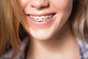 underbite braces