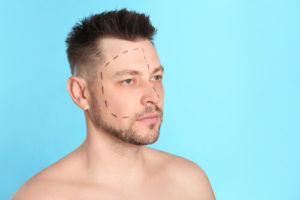 answering the question best rhinoplasty surgeon near me