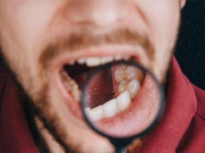 hiv mouth symptoms