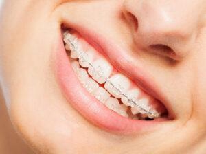 orthodontic braces